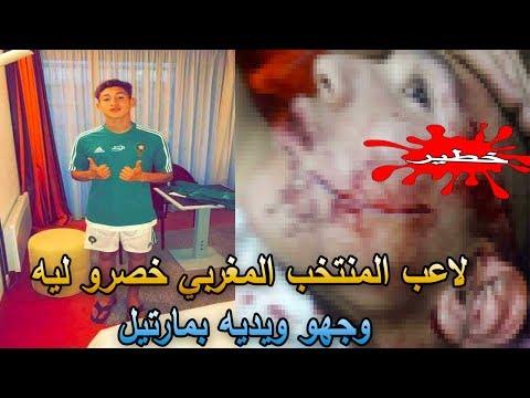 مصر اليوم - شاهد التعدي على لاعب المنتخب المغربي
