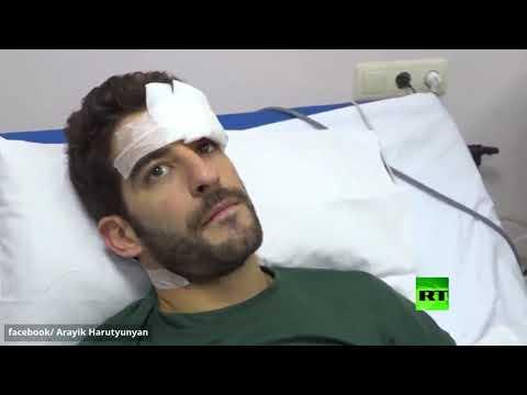 شاهد رئيس قره باغ يزور صحافيين مصابين جراء القصف الأذربيجاني