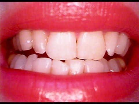 مصر اليوم - شاهد خلطة عجيبة لتبييض الأسنان في 10 دقائق