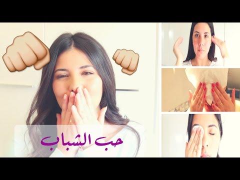 مصر اليوم - بالفيديو كيفية تفادي حب الشباب وطريقة التخلُّص منه