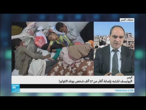 مصر اليوم - شاهد  اليونيسف تشتبه بإصابة أكثر من 17 ألف شخص بوباء الكوليرا