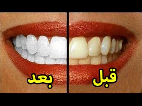 مصر اليوم - شاهد أسرع 8 طرق لتبييض الأسنان خلال دقائق في المنزل