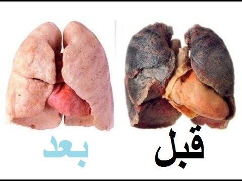 مصر اليوم - شاهد طريقة جديدة تنظيف الرئة من النيكوتين خلال 72 ساعة