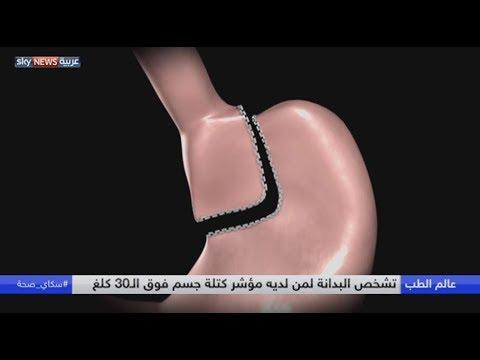 مصر اليوم - شاهد البدانة مرتبطة بالسكري والقلب والسرطان