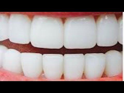 مصر اليوم - شاهد وصفة لتبييض الأسنان في دقيقتين وإزالة الإصفرار