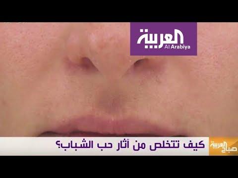 مصر اليوم - شاهد طرق فعالة ومختلفة لعلاج ندبات حب الشباب