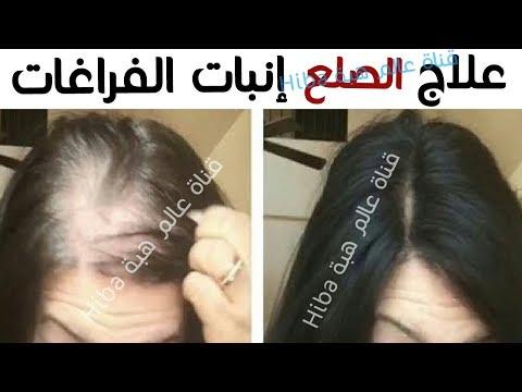 مصر اليوم - شاهد علاج الصلع وانبات فراغات الراس