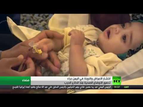 مصر اليوم - شاهد تدهور الوضع الصحي منذ اندلاع حرب اليمن