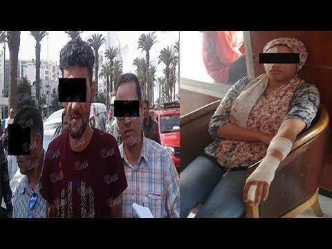 مصر اليوم - شاهد رجل يتسبب في تشويه جسد أستاذة