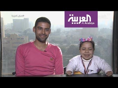 شاهد لقاء طريف مع طفلة مصرية تحدت الاعاقة