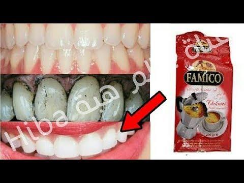شاهد وصفة مٌجرّبة تقضي على اصفرار الأسنان فورًا