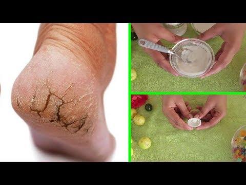 خليط لعلاج تشققات الأقدام نهائيا