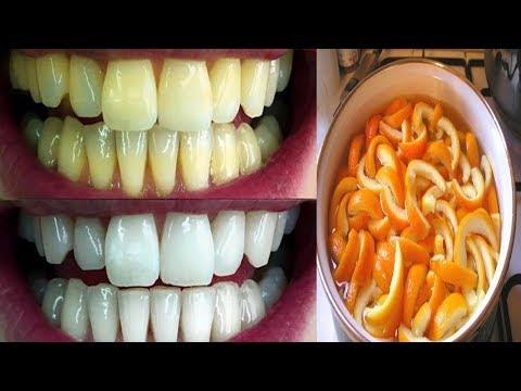 خليط فعّال لتبيض الأسنان من أول استعمال