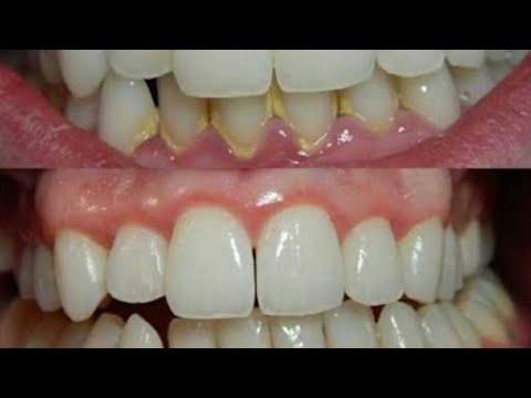 شاهدأقوي وصفه مجُربه للتخلص من جير الأسنان