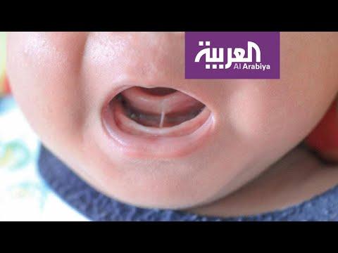 شاهد كيف نتعامل مع مشكلة ربط اللسان عند الأطفال