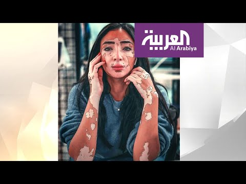 شاهد مدونة مصرية حولت إصابتها بالبهاق إلى نجاح