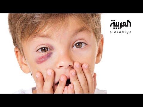 شاهد طريقة لحماية عيون الأطفال من هذه الألعاب