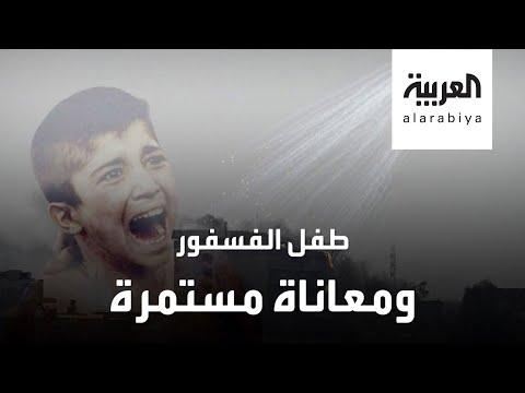 شاهد مأساة مستمرة لطفل الفوسفور المحترق بالقصف التركي