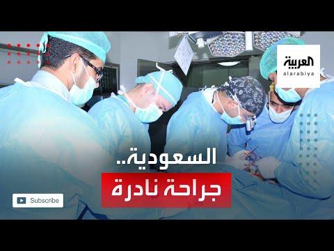 شاهد عملية جراحية نادرة لفريق طبي سعودي تعيد قلب طفلة لمكانه